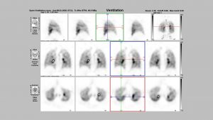 Rostocker Nuklearmedizin Baier - Ventilation-Lungenzintigraphie
